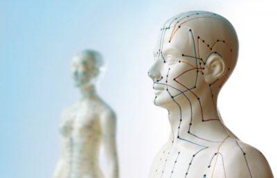 Akupunktur in Arztpraxis in Aachen